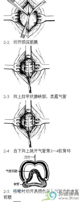 气管切开术步骤_手术查询_39健康网
