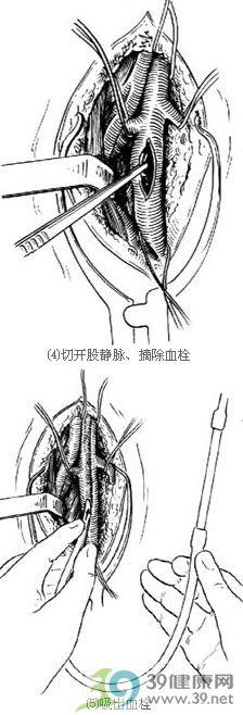 髂,股静脉血栓摘除术步骤_手术查询_39健康网