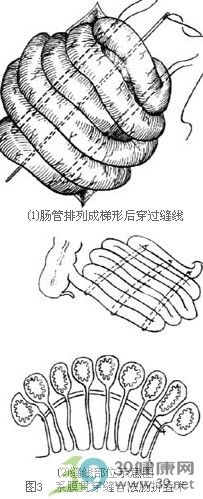 肠折叠术步骤_手术查询