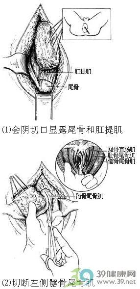 女性骨盆手绘图