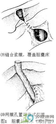 胆囊切除术步骤_手术查询_39健康网