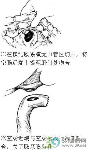 肝实质的镜下结构手绘图
