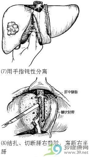 肝显微结构