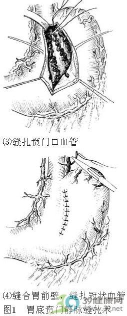 动静脉手绘图片