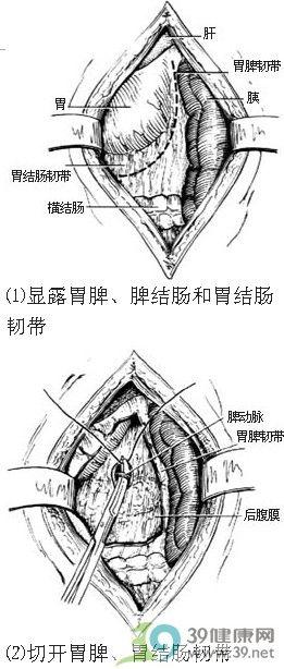 脾切除术步骤_手术查询_39健康网