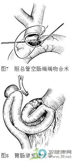 胰头,十二指肠切除术手术步骤详解