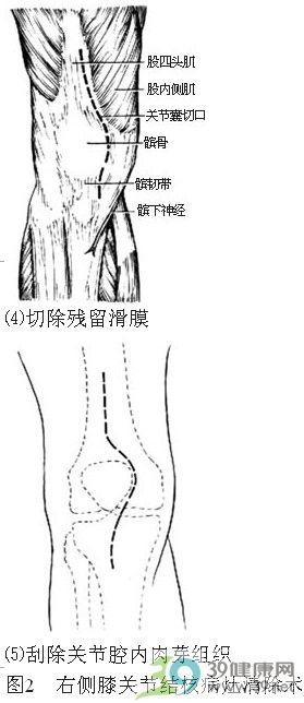 膝关节结核病灶清除术步骤_手术查询_39健康网