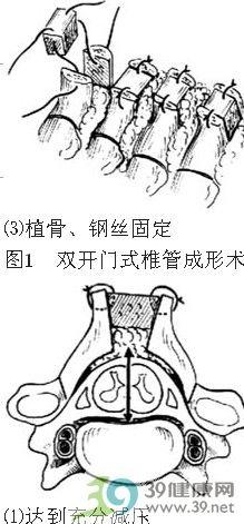 双开门式椎管成形术