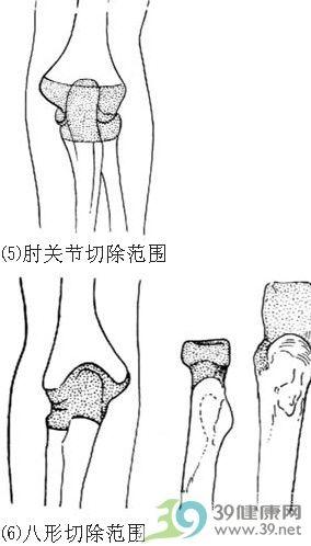 肘关节切除术步骤_手术查询_39健康网