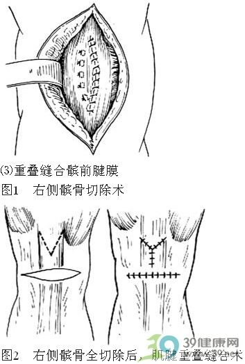 髌骨切除术步骤_手术查询_39健康网