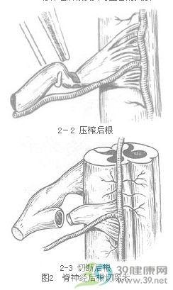 椎管内肿瘤切除术步骤_手术查询_39健康网