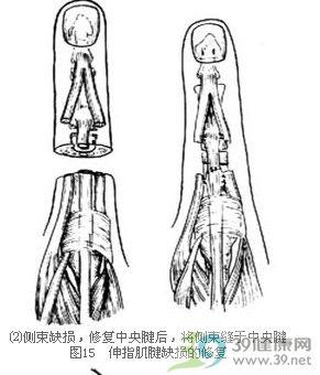 静脉血管手绘图
