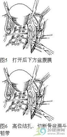 广泛性子宫切除术步骤