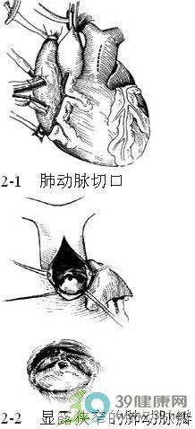 心脏瓣膜手绘图