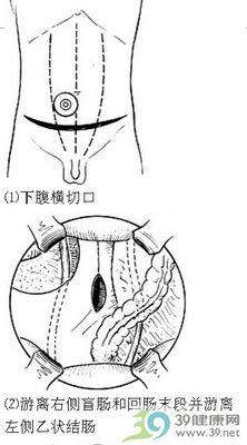 回肠膀胱术步骤_手术查询_39健康网