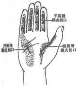 急性化脓性腱鞘炎