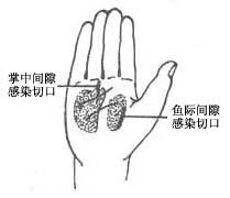 手掌深部间隙感染