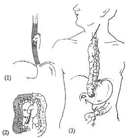 食管瘢痕性狭窄