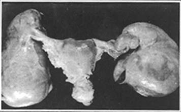 慢性输卵管卵巢炎