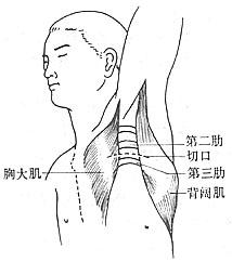 胸廓出口综合征