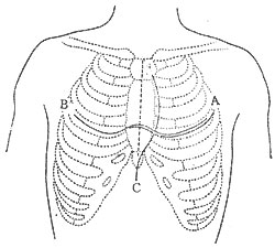 缩窄性心包炎