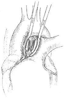 主肺动脉隔缺损