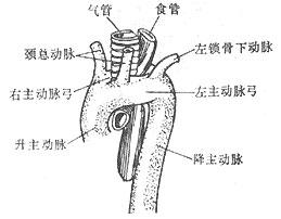 先天性主动脉弓畸形