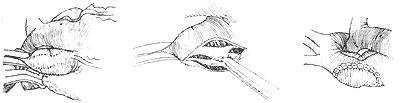 先天性主动脉瓣上狭窄