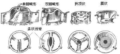 主动脉瓣膜部狭窄