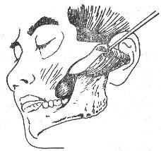 咬肌间隙感染
