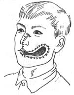 口腔颌面部软组织损伤