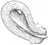 子宫内膜息肉