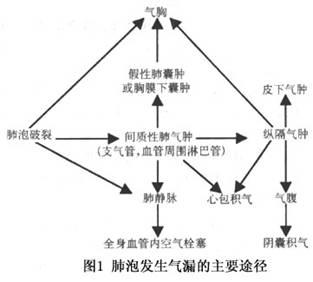 婴儿肺部结构图