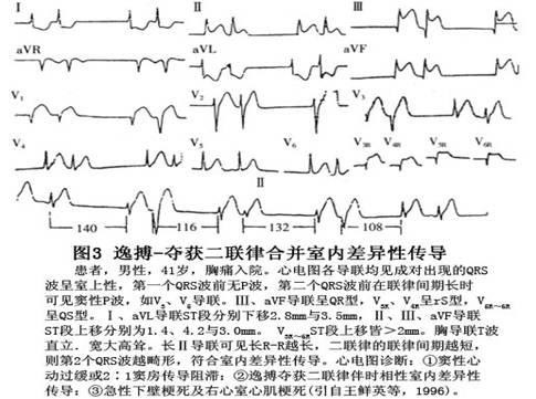 电路 电路图 电子 乐谱 曲谱 原理图 485_361
