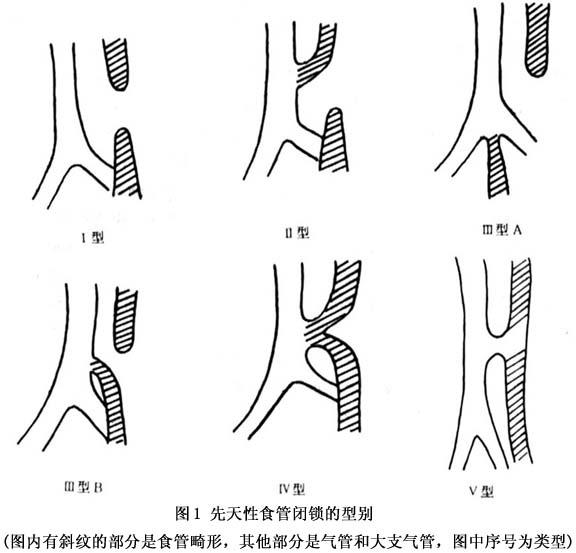泌尿系 手绘图谱