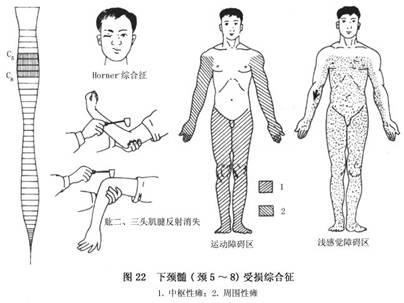 脊髓结构示意图
