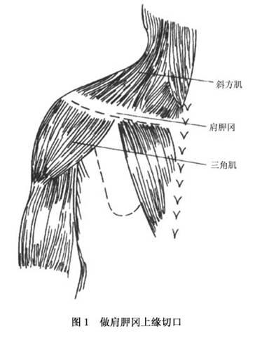 肩胛骨judet手术入路图解