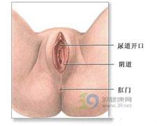 幼女性外阴阴道炎