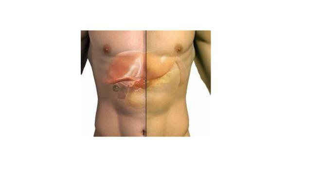胆囊炎症状吃什么药_胆囊炎的症状图片,胆囊炎图片大全_胆囊炎_39疾病百科