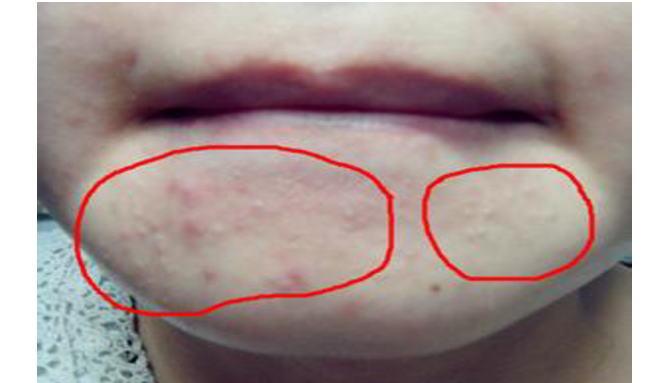 痘的原因_粉刺的症状图片,粉刺图片大全_粉刺_39疾病百科