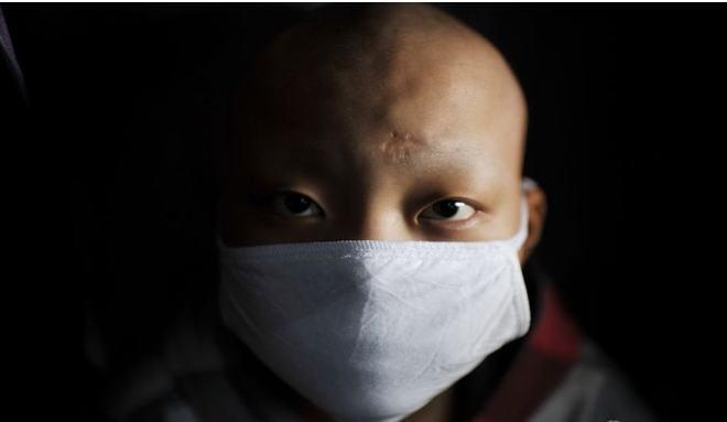 新闻资讯网站_白血病的症状图片,白血病图片大全_白血病_39疾病百科