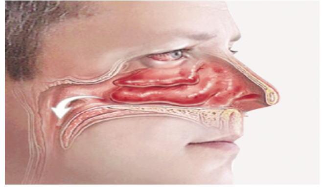 鼻息肉图片_鼻息肉的症状图片,鼻息肉图片大全_鼻息肉_39疾病百科
