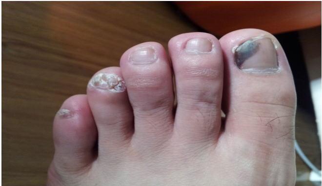 灰指甲的症状图片,灰指甲图片大全 灰指甲 39疾病百科