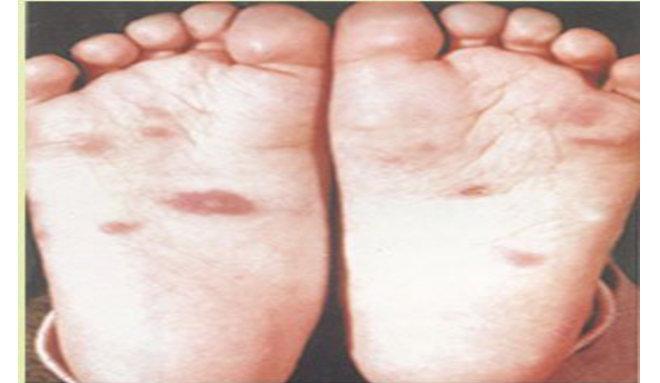 小儿黄疸如何治疗_手足口病的症状图片,手足口病图片大全_手足口病_39疾病百科