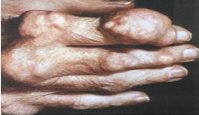 尿酸高的症状图片_痛风的症状图片,痛风图片大全_痛风_39疾病百科