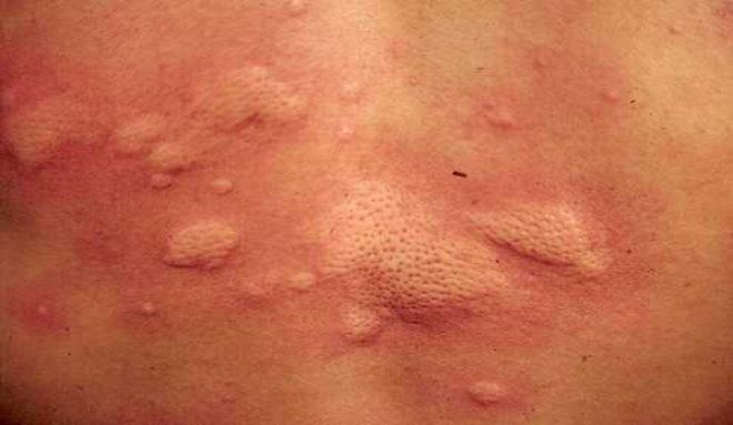 引起灰指甲的原因_荨麻疹的症状图片,荨麻疹图片大全_荨麻疹_39疾病百科