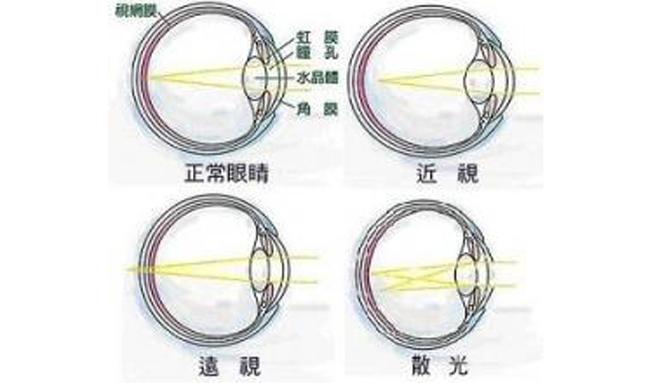 儿童眼睛散光弱视_散光的症状图片,散光图片大全_散光_39疾病百科