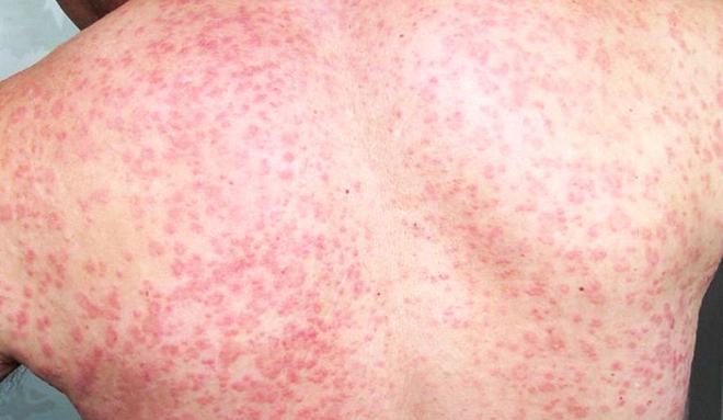 头皮溢脂皮炎_玫瑰糠疹的症状图片,玫瑰糠疹图片大全_玫瑰糠疹_39疾病百科