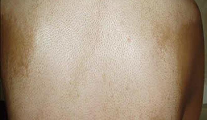 尿酸高的症状图片_硬皮病的症状图片,硬皮病图片大全_硬皮病_39疾病百科