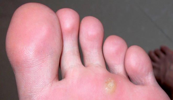 跖疣的症状图片,跖疣图片大全 跖疣 39疾病百科